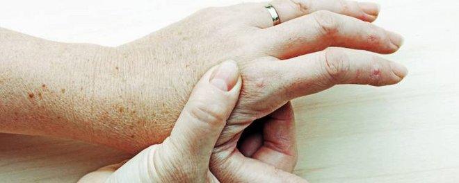 Übungen kapselriss finger DoktorWeigl erklärt