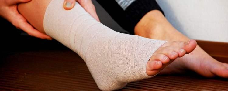 Sprunggelenk syndesmoseband tapen. Bandverletzungen des Sprunggelenks